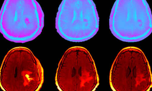 Diffusion-weighted, magnetic resonance imaging data of human brains.